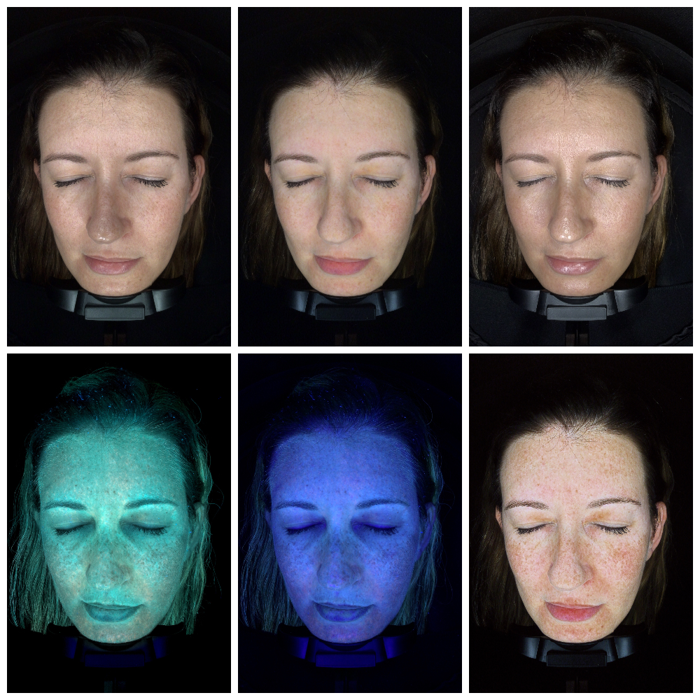 Je commence une cure de soins pour le visage Derm Light chez Dépil Tech!- Mon Petit Quelque Chose